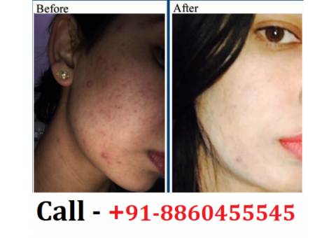 Best Skin Specialist Clinic in Kushinagar || 8860455545