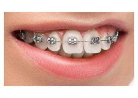 Best Dental Braces In Kolkata - Kolkata Dental Braces