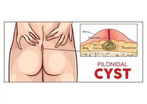 8010931122 Pilonidal sinus treatment in Chittranjan Park